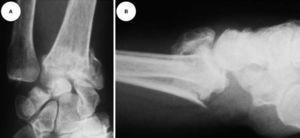 """A Radiografía antero-posterior, de paciente de 65 años de edad, que presenta fractura intrarticular de muñeca, con acortamiento radial e inclinación externa. El sector central está afectado, con discrepancia de longitud entre el radio y el cúbito por hundimiento de la fosa del semilunar. El sector interno presenta una fractura oblicua proximal de la estiloides del cúbito desplazada; con aumento de la distancia cubito-semilunar y una marcada """"translocación"""" radial del carpo. (B) Radiografía lateral. Se observa una fractura intrarticular, con marcado desplazamiento dorsal de la superficie articular y acortamiento radial por la conminución dorsal."""