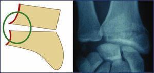 Patrón de lesión del sector radial. Compromiso de la cortical Interna.