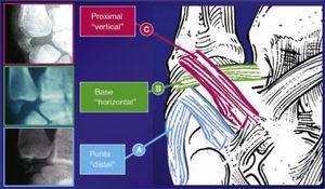 Patrones de lesión del sector interno. Fracturas en la estiloides cubital, existen tres diferentes tipos de patrones.