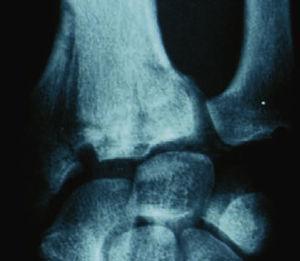 """Fractura de muñeca con sector central """"sano"""", en su desplazamiento hacia radial, se produce la lesión en el sector externo, fractura estiloides radial y/o fractura de escafoides."""