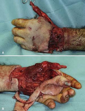 Avulsión cutánea de dorso y palma de mano izquierda y del pulgar a la altura de la articulación metacarpofalángica.