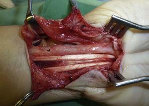 Sinovectomía de los tendones desde ulnar hacia radial evidenciándose el neuroma en continuidad del nervio mediano.