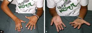 Octavo año postoperatorio. (A) Pronación activa. (B) Supinación activa