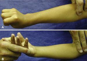 (A) Paciente con hemiparesia espástica. Antebrazo en pronación marcada, muñeca en extensión y pulgar en flexo y aducto. (B) Maniobra preoperatoria para comprobar la supinación pasiva completa del antebrazo.