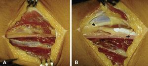 (A) Abordaje quirúrgico. (B) Identificación de arteria radial (signo suma) y del nervio radial (asterisco).