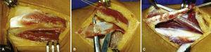 (A) Identificación tendón del braquiorradial. (B y C) Extracción del hemitendón del braquiorradial. Se utilizara la mitad más volar de su inserción para mejorar la acción supinadora.