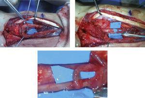 (A) Lesión de la rama cutánea del n. mediano para el triángulo palmar secundaria a cirugía previa de osteosíntesis de radio con placa palmar realizada en otro centro. (B y C) Conexión término-lateral al tronco principal del mediano con puntos 10/0 bajo microscopia quirúrgica.