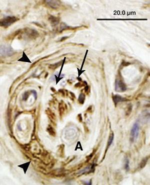 Visión de un corpúsculo de Ruffini localizado en un ligamento escafolunar con la tinción inmunohistoquímica p75. El corpúsculo de Ruffini es el mecanorreceptor más prevalente en los ligamentos carpianos, y está constantemente enviando información sobre posiciones articulares estáticas. Este mecanorreceptor se caracteriza por tener terminaciones dendríticas que se ramifican entre las fibras de colágeno (flechas completas), y por una cápsula perineural incompleta (cabezas de flechas). El axón aferente se localiza en el centro del receptor, y no tiene capacidad inmunoreactiva (A).