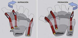 El efecto rotacional de los principales músculos motores de la muñeca se explica por la dirección que sigue el tendón desde su origen hasta la zona de inserción. El APL, ECRL y FCU son supinadores de la hilera distal, mientras que el ECU y el FCR son pronadores.
