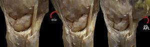 Visión dorsal de una muñeca izquierda en posición neutra con una disociación lunopiramidal. La carga aislada del APL genera una incongruencia entre semilunar y piramidal, mientras que la contracción aislada del ECU mejora la inestabilidad.