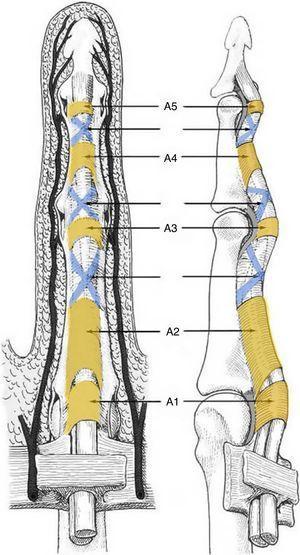 Esquema de la disposición de las poleas anulares y cruciformes en un dedo trifalángico.