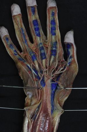Preparación anatómica de las vainas sinoviales digitales y digitocarpianas, que se han inyectado con látex azul.
