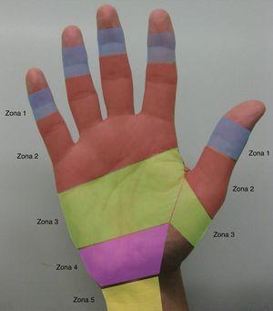 Zonas de lesión de los tendones flexores de los dedos trifalángicos y del pulgar según la Federación Internacional de Sociedades de Cirugía de la Mano.