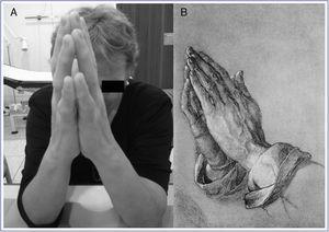 A) Signo de la oración en una paciente diabética donde se observa la incapacidad de oponer por completo las superficies palmares de los dedos. B) Estudio realizado por Alberto Durero (1471-1528) de las manos de un apóstol en actitud de oración.