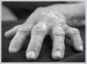 Signo de la mesa en una paciente diabética. Obsérvese que la mano no toca la superficie de la mesa al existir una contractura de las articulaciones metacarpofalángicas e interfalángicas.