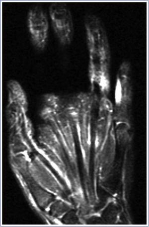 Corte coronal de una RM en T2 con supresión grasa. Obsérvese la sinovitis de todos los flexores, desde la muñeca a los dedos. La contractura en flexión de las articulaciones interfalángicas proximales impide ver la sinovitis en algunos dedos.