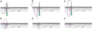 A. La sutura se introduce en el cabo proximal y se saca al interior de la incisión longitudinal. B-E. Se corta uno de los hilos de la sutura. El que permanece unido a la aguja se pasa bajo los hilos bloqueados siguiendo la aguja intramuscular. F. Se anudan ambos cabos de la sutura quedando así los nudos de la sutura central en el interior de la incisión longitudinal y fuera de la zona de reparación.