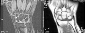 RM: alteración en la intensidad de la señal del hueso semilunar. Varianza cubital neutra.