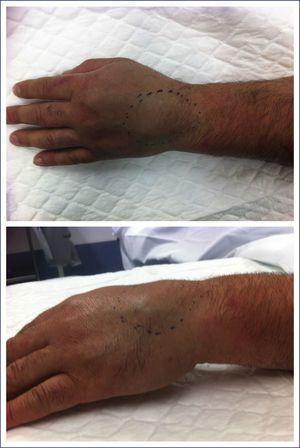 Paciente 1. Aspecto clínico de la tumoración localizada en el dorso de la mano izquierda. Se pueden determinar el tamaño aproximado y la deformidad dorsal que produce.