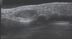 Sección sagital de ecografía de un tumor de células gigantes de la vaina tendinosa situado en la región volar de la falange proximal.