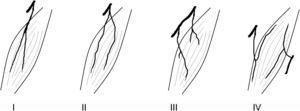 Tipos de inervación, según Taylor et al.4. Tipo I: ramo único no ramificado entrando al músculo; tipo II: ramo único ramificado entrando al músculo; tipo III: ramos múltiples procedentes de un mismo nervio; tipo IV: ramos múltiples procedentes de distintos nervios.