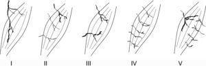 Tipos de vascularización, según Mathes y Nahai10. Tipo I: pedículo vascular único; tipo II: pedículo vascular dominante y pedículos menores; tipo III: 2 pedículos vasculares codominantes; tipo IV: pedículos vasculares segmentarios; tipo V: pedículo vascular dominante y pedículos secundarios segmentarios.