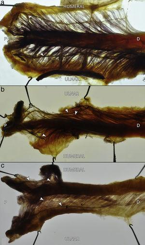 Especímenes teñidos según la técnica de Sihler. Se aprecian los distintos patrones de inervación intramuscular identificados: a) un ramo para cada cabeza; b) 2 ramos para la cabeza ulnar y uno para la humeral; c) 2 ramos para cada cabeza. D: extremo distal; P: extremo proximal; puntas de flecha: ramos intramusculares.