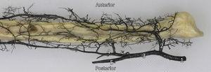 Preparación anatómica de la distribución de los vasos arteriales del peroné. 1: Arteria poplítea&#59; 2: Arteria tibial anterior&#59; 3: Tronco tibioperoneo&#59; 4: Arteria peronea&#59; 5: Arteria tibial posterior (seccionada).