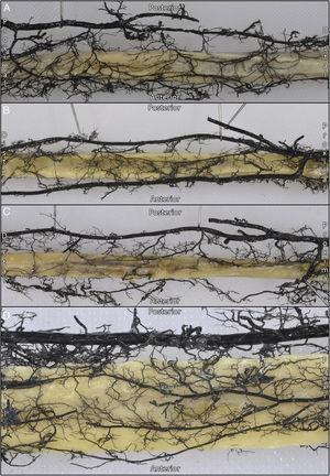 Preparaciones anatómicas de la distribución de la circulación perióstica en 4 especímenes.