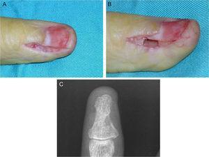 A-C: escisión ungueal y abordaje lateral en un paciente con invasión ósea en el borde cubital del pulgar.