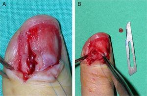 A y B: tumor glómico en tono rojo intenso.