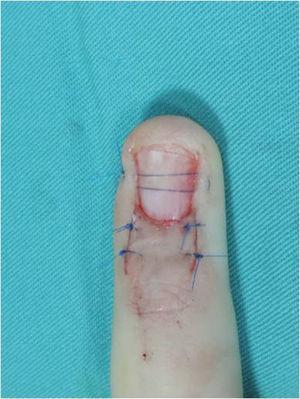 Reposición de la uña en la paciente de las figuras 2A,B y 7 para proteger la sutura del lecho ungueal y favorecer el tratamiento postoperatorio.
