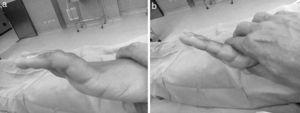 Maniobra de Bouvier. a) Posición inicial de la mano. b) Al prevenir la hiperextensión de la articulaciones MCF por presión dorsal sobre las falanges proximales, se logra la extensión completa de las articulaciones IF.