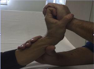Ejercicios tenodésicos con ayuda de la mano del fisioterapeuta. Extensión de la muñeca con flexión de los dedos. Se realizará también la flexión de la muñeca con la extensión de los dedos. El tacto con ligera presión sobre el dorso de la mano es el estímulo propioceptivo.