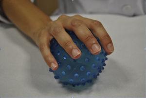 Propiocepción con pelota. Los estímulos propioceptivos serán la presión ejercida sobre la misma y la resistencia que ejerce la pelota sobre la cara palmar de la mano, así como la estabilización del codo. Si colocamos la mano sana sobre el dorso de la afecta, aumenta el control propioceptivo.