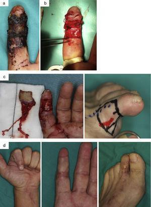 Varón de 41 años con degloving del 2.o dedo de la mano izquierda y avulsión de ambos nervios colaterales. a) Necrosis cutánea posterior tras revascularización (lesión nerviosa no reparable inicialmente mediante sutura nerviosa directa). b) Desbridamiento de tejido necrótico. c) Diseño y transferencia de colgajo neurocutáneo del 2.o dedo del pie. d) Resultado a los 6 meses en la zona donante y en la zona receptora.
