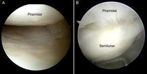 Visión desde el portal 6R en muñeca derecha. A)Porción membranosa del ligamento LP normal marcado por la línea discontinua en azul. B)Rotura del ligamento LP.