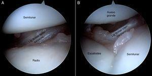 Visión de los ligamentos dorsales desde el portal volar central en muñeca derecha. A)Visión del ligamento radiocarpiano dorsal en la articulación radiocarpiana. B)Visión del ligamento intercarpiano dorsal en la articulación mediocarpiana.