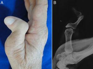 Deformidad en Z en adulto. Aspecto clínico (A) y radiológico (B).