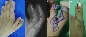 Duplicación tipo VII Wassel. Aspecto clínico (A) y radiológico (B). Diseño de las incisiones (C). Conservación del pulgar radial. Osteotomía fijada con aguja (D).