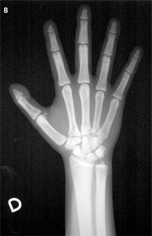 A: imagen del primer dedo de ambas manos de la paciente en la actualidad. B: radiografía de las manos: hipoplasia o acroosteólisis del extremo distal de las falanges distales.