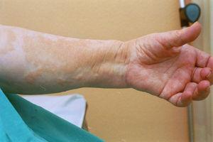 Indurate papule-plaques with brownish hyperpigmentation of the arm.