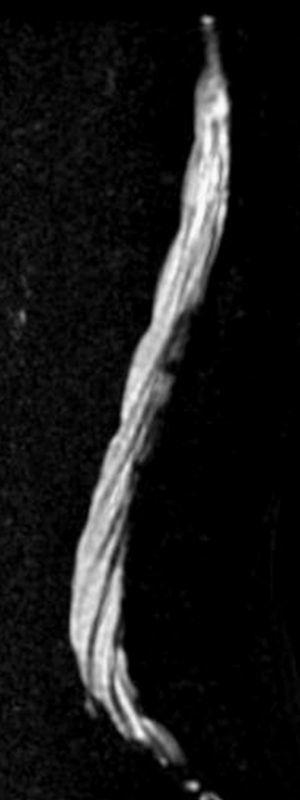 Mielo-resonancia magnética (RM). Imagen sagital en RM con técnica de mielografia delimitando las raíces de la cola de caballo en el saco tecal.