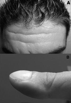 A) Aumento de tamaño de los pliegues frontales asociado a surcos prominentes. B) Dedo en «palillo de tambor» con uñas en «vidrio de reloj».