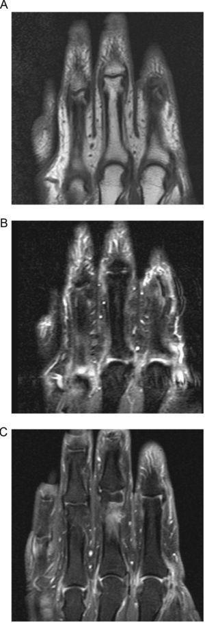 A) Cortes coronales de RM en secuencias T, B) Short Tau inversion recovery (STIR). C) T1 con supresión grasa y tras la administración de contraste endovenoso demuestran cambios de sinovitis en las articulaciones metacarpo-falángicas, con señal baja en T1, alta en STIR e intenso realce tras la administración de contraste.