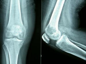 Radiolucencia difusa en metáfisis y epífisis femoral distal sin signos de fractura.