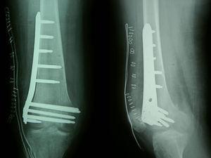 Control radiográfico posquirúrgico tras reducción y osteosíntesis percutánea con placa LISS del fémur distal.