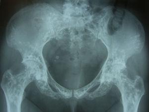 Radiografía simple de pelvis. Múltiples lesiones circulares de radiodensidad aumentada.