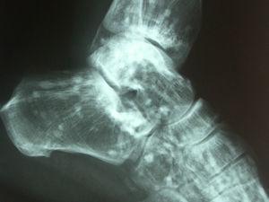 Radiografía simple de tobillo. Numerosas lesiones radiodensas, circulares y bien definidas en los huesos del tarso.
