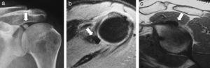Hombro izquierdo. Radiografía AP de hombro. a) RM con secuencias coronal DP, b) y T2 con saturación grasa, c) Supresión sagital DP. Calcificación ovoidea, más extensa, en idéntica localización a la observada en el hombro derecho, afectando a la zona de inserción ósea del tendón largo del bíceps (flecha). La RM no llegó a identificar la rotura del labrum superior.